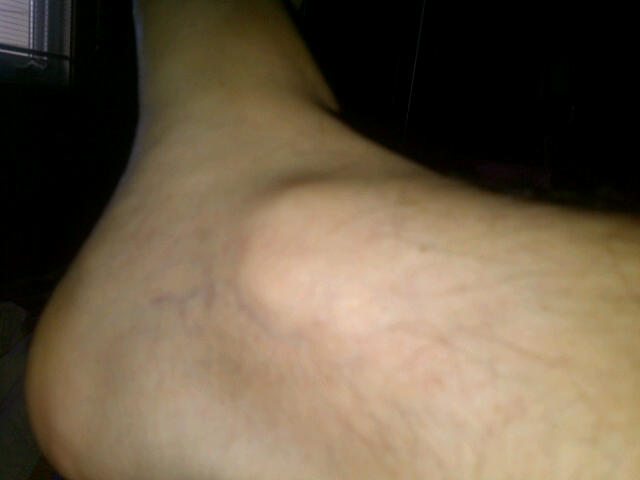 This is a normal ankle