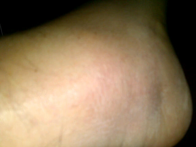 Can u spot my ankle? hmmm?