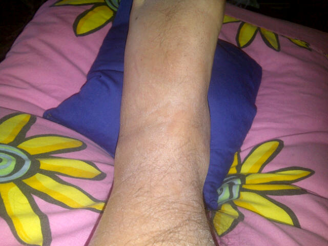 my ankle on day 3
